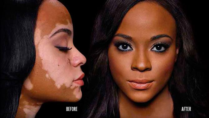 dermablend-vitiligo